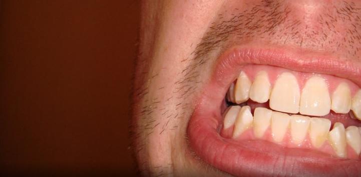 dientes hombre