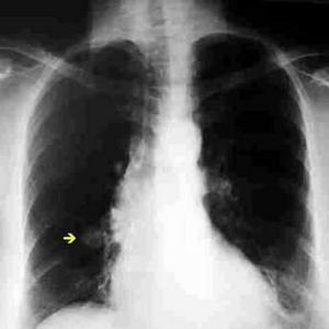 nodulo-pulmonar